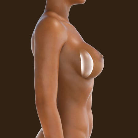 Female breast implant, breast augmentation