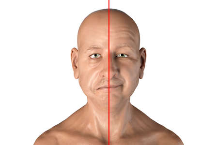 Facial nerve paralysis, Bell's palsy, 3D illustration showing male with one-sided facial nerve paralysis