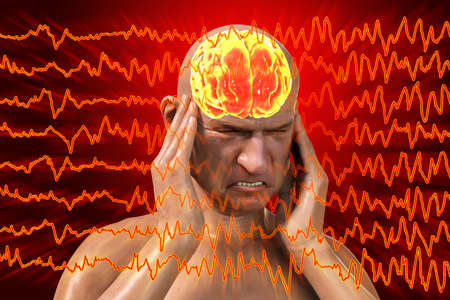 Headache, migraine, stroke, conceptual 3D illustration showing a man with pain in head on a background with migraine EEG waves