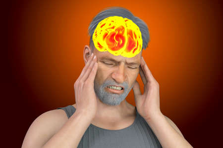 Headache, migraine, stroke, conceptual 3D illustration showing a man with pain in head