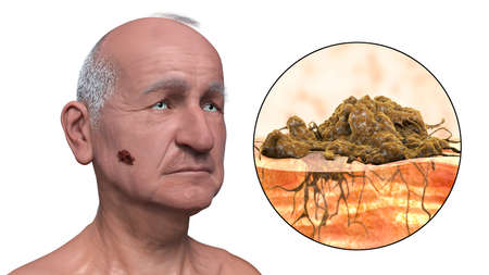 Melanoma, a cancer developing from pigment-containing cells melanocytes, 3D illustration showing melanoma on the face and close-up view of cancer invasion