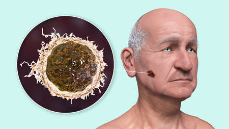 Melanoma, a cancer developing from pigment-containing cells melanocytes, 3D illustration showing melanoma on the face skin and close-up view of cancer cells