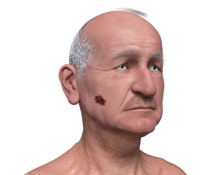 Melanoma on face skin, a cancer developing from pigment-containing cells melanocytes, 3D illustration