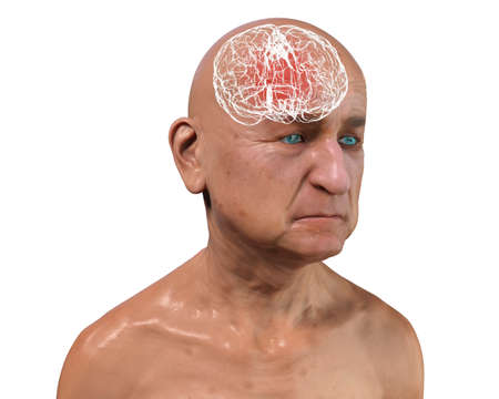 Dementia, conceptual 3D illustration showing an elderly person with progressive impairments of brain functions