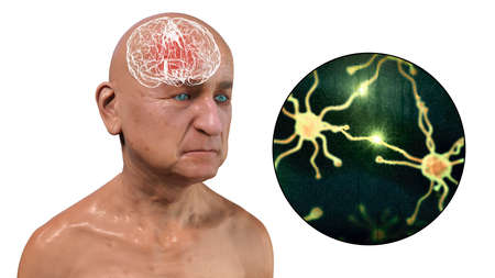Dementia, conceptual 3D illustration showing an elderly person with progressive impairments of brain functions, distruction of neurons and their networks