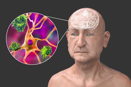 Dementia, conceptual 3D illustration showing an elderly person with progressive impairments of brain functions, amyloid plaques in brain, neurofibrillary tangles and distruction of neuronal networks