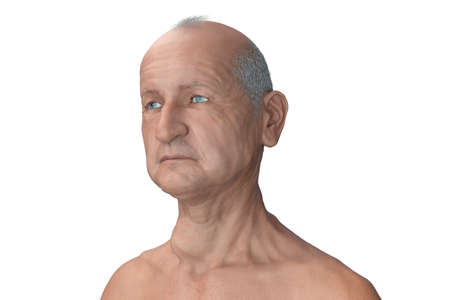 Thyroid cancer, 3D illustration showing tumor inside thyroid gland Standard-Bild