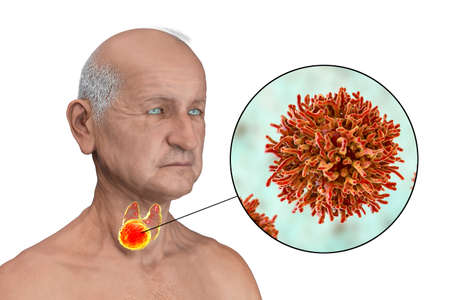 Thyroid cancer, 3D illustration showing tumor inside thyroid gland and closeup view of cancer cells Standard-Bild