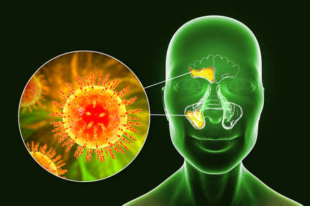 Viral sinusitis, inflammation of paranasal cavities. 3D illustration showing inflammation of frontal and maxillary sinuses and close-up view of viruses that cause sinusitis