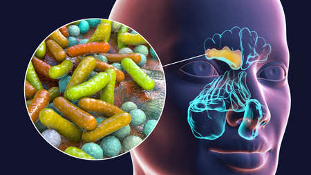 Sinusitis, inflammation of paranasal cavities. 3D illustration showing purulent inflammation of frontal and maxillary sinuses and close-up view of bacteria that cause sinusitis