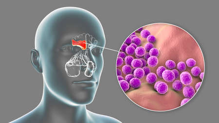 Sinusitis, inflammation of paranasal cavities. 3D illustration showing purulent inflammation of frontal sinus and close-up view of bacteria Staphylococcus aureus that cause sinusitis