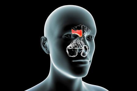 Sinusitis, inflammation of paranasal cavities. 3D illustration showing purulent inflammation of frontal sinus