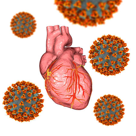 COVID-19 viruses affecting the heart, conceptual 3D illustration. Heart complications associated with COVID-19 coronavirus disease. The negative effect of SARS-CoV-2 virus on the human heart. Stock Photo