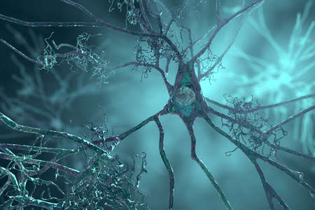 Neurons in dementia. Alzheimer's disease, Huntington's disease. 3D illustration showing amyloid plaques in brain tissue, neurofibrillary tangles and distruction of neuronal networks