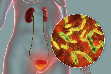 Cystitis, bacterial infection of urinary bladder, conceptual 3D illustration showing bacteria in urine