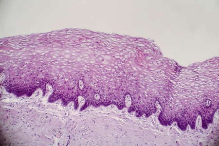 Cancer of cervix. Light micrograph of cervical biopsy. Photo under microscope. Selective focus
