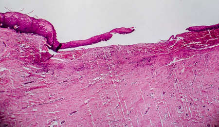 Cervical erosion, also known as eversion and ectropion, light micrograph. Photo under microscope, selective focus. Cervical ectopy