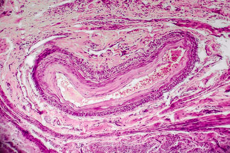 Cross-section of a blood vessel from cervix uteri with red blood cells, light micrograph, photo under microscope Stock Photo