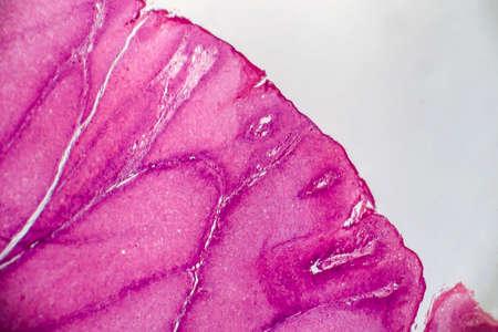 Condyloma acuminatum, also known as genital warts. Light micrograph, photo under microscope