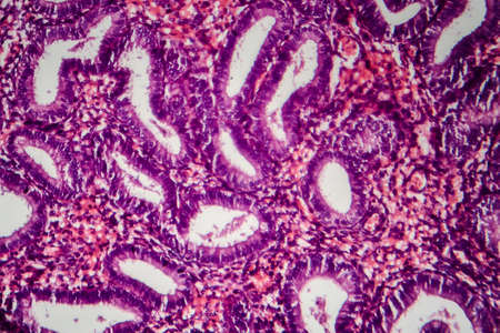 Endometriosis, a disorder in which cells similar to those in the endometrium grow outside the uterus. Light micrograph, photo under microscope Stock Photo