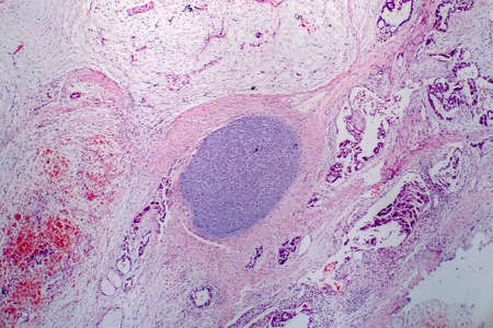 Light micrograph of teratoma, a tumor made up of several different types of tissue, such as hair, teeth, muscle, or bone. Teratoma is typically found in the ovary, testicle, or coccyx