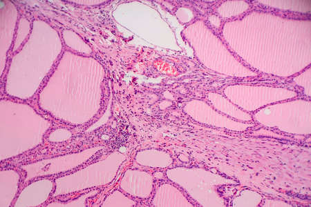 Endemic goiter, light micrograph, abnormal enlargement of the thyroid gland due to dietary iodine deficiency. Photomicrograph shows follicles of varying size, abundant colloid, lymphocytic infiltrate