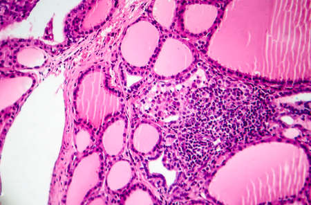 Toxic diffuse goiter, or Graves' disease, an autoimmune disease that affects the thyroid. Light micrograph shows hyperplastic thyroid follicles, decreased colloid