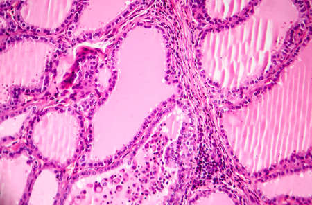 Toxic diffuse goiter, or Graves' disease, an autoimmune disease that affects the thyroid. Light micrograph shows hyperplastic thyroid follicles, papillary infoldings