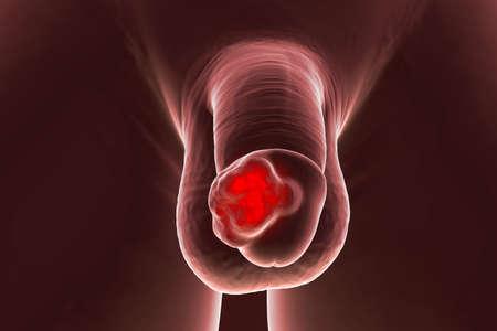 Penile cancer, 3D illustration showing malignant tumor on the human penis