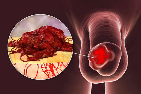 Penile cancer, 3D illustration showing malignant tumor on the human penis and close-up view of a cancer mass invading underlying tissues
