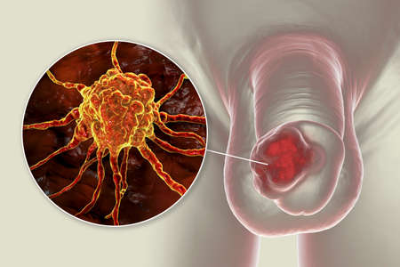 Penile cancer, 3D illustration showing malignant tumor on the human penis and close-up view of a cancer cell
