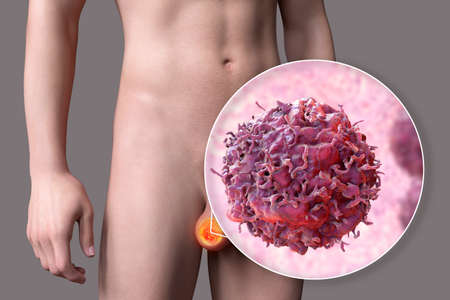 Testicular cancer, medical 3D illustration showing malignant tumor in the testis and close-up view of testicular cancer cell