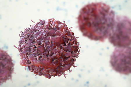 Cancer cells, malignant cells, scientific 3D illustration Stock Photo