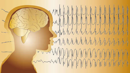 man close up: a medical background with a man and epilepsy waves