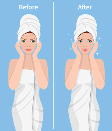 Woman skin care. Before and after face treatment. Facial skin problems. SPA beauty and health concept. Vector illustration in flat style Illustration