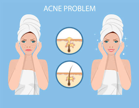 Face with acne. female facial skin problem. SPA beauty and health concept. Vector illustration in flat style