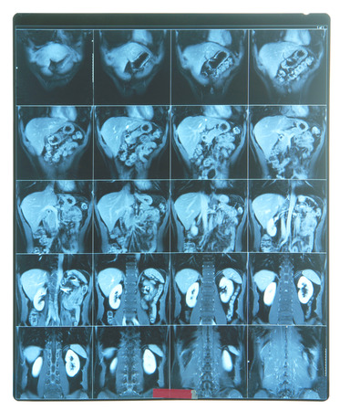 mra: MRI scan image
