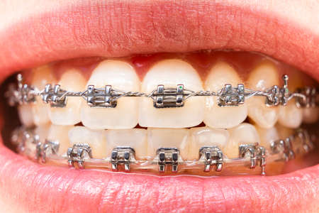 Foreground teeth with braces with traces of food. Dental care photo. Smile woman with orthodontic accessories. Orthodontic treatment 스톡 콘텐츠