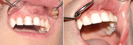 bad hygiene: Caries central and lateral incisors of the upper jaw before and after treatment