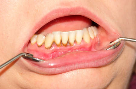 Tartar, plaque on frontal teeth and gingivitis