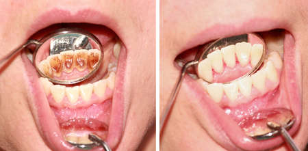 periodontics: Before and after removal of tartar. Reflection in the mirror.
