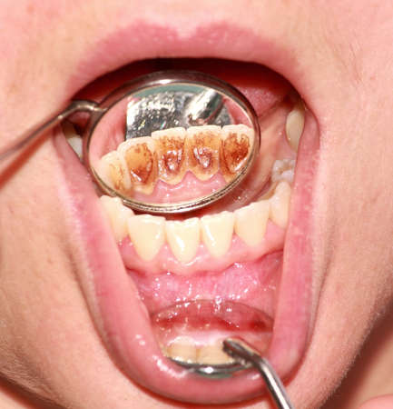 Tartar, plaque on frontal teeth and gingivitis. Reflection in the mirror