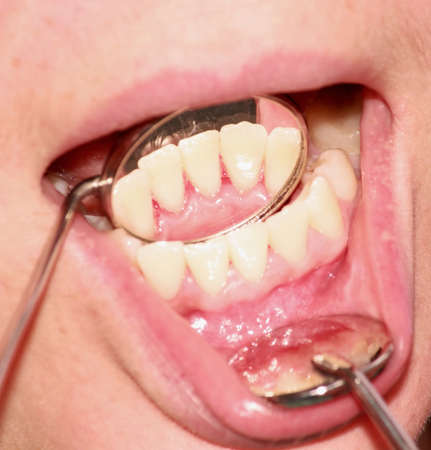 odontolith: Front teeth after removal of tartar. Reflection in the mirror.