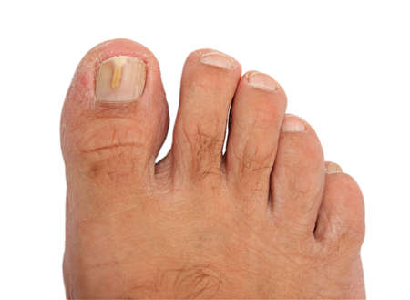 inconvenient: A toenail infected with a fungus. Image is isolated on white