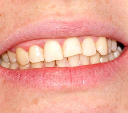 dentition: Curvatura della dentizione superiore. Immagine close-up