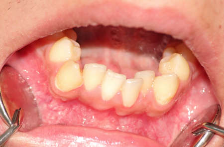 lower teeth: Malocclusion. Crowding of the teeth of the lower jaw