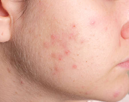 Acne on the girls face. Image close-up