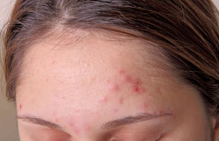 bad condition: Acne on the girls forehead. Color photo close-up