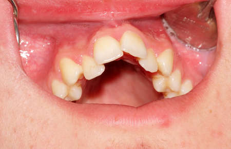Malocclusion. Crowding of the teeth of the upper jaw