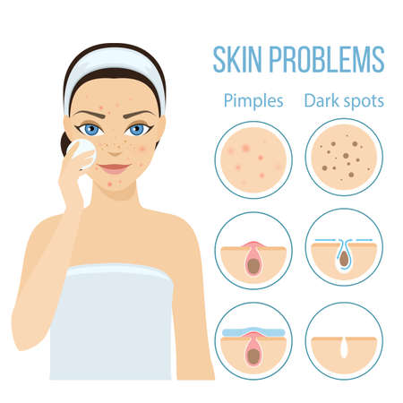 Girl cleans her face with cosmetic lotion. Skin problems solution, home remedies.
